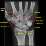 Is my wrist fractured? How to tell and what to do…