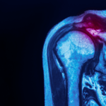 Don't Wait! Is 2020 The Right Year For Shoulder Surgery?