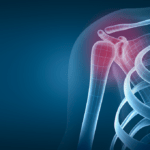 Part II: Shoulder Arthritis Treatment Options